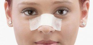 исправление носа после перелома