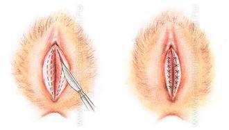 операция по уменьшению размеров малых половых губ