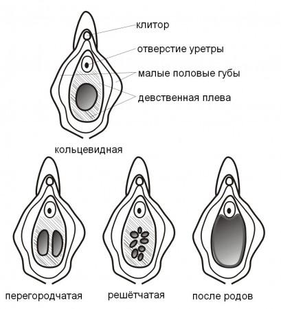 варианты девственной плевы