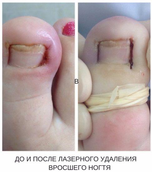 методика лазерного удаления вросшего ногтя