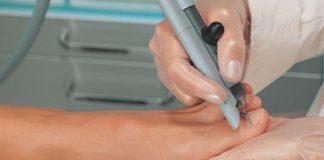 удаление вросшего ногтя операция