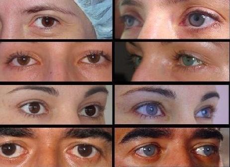 до и после смены цвета глаз