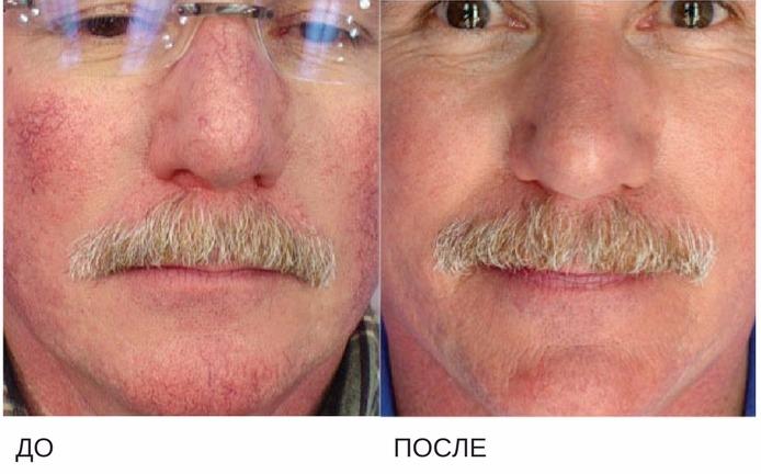 лечение купероза фототерапией