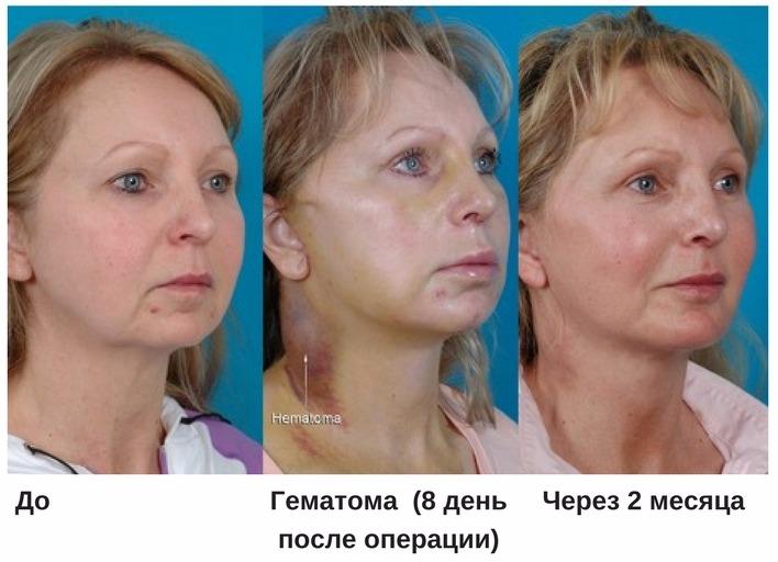 осложнения после эндоскопической подтяжки лица