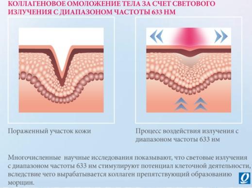 эффект солярия