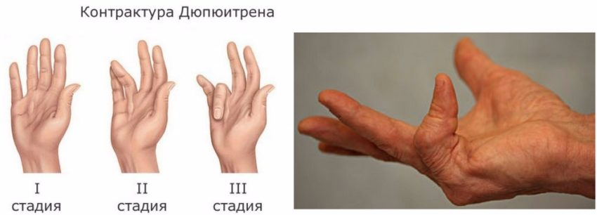 хирургическое лечение патологии