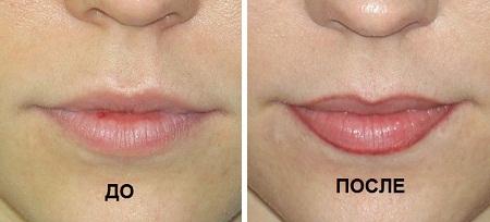 до и после татуажа губ
