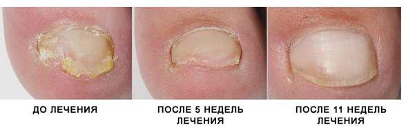сколько процедур требуется для лечения грибка лазером