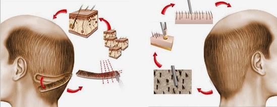 методы пересадки волос