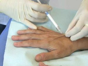 особенности проведения мезотерапии рук
