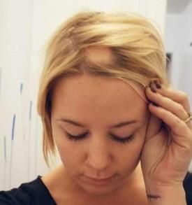 показания к криотерапии волосистой части головы