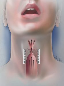изменение голоса с помощью операции