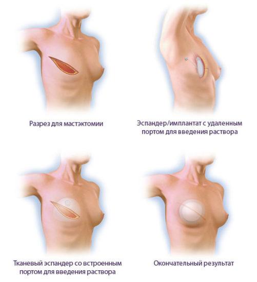 варианты реконструкции молочной железы