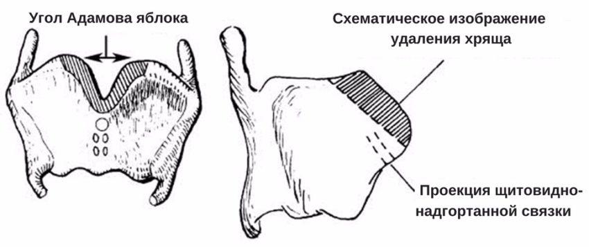 виды операций по удалению кадыка