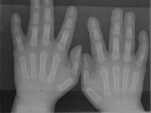 синдактилия на рентгене