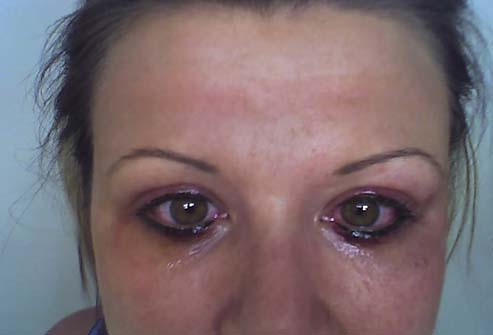 Последствия татуажа глаз
