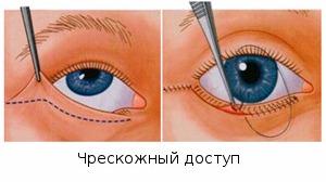 методика выполнения операции