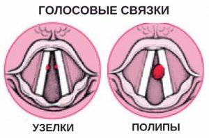 показания к операции на голосовых связках