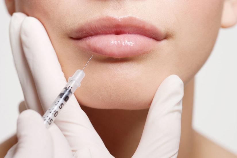 виды биоревитализации губ