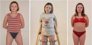 операция по исправлению кривых ног