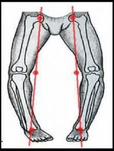 показания к лечению кривых ног