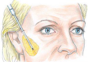 операция по удалению жира со щек