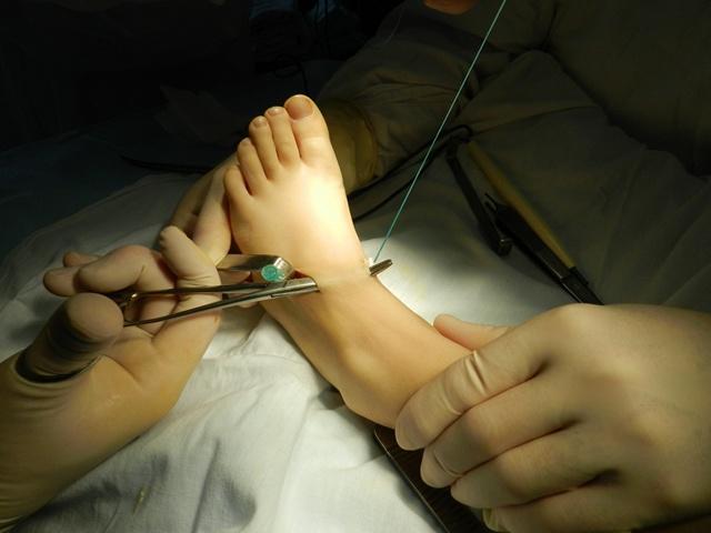 хирургическое лечение косолапости