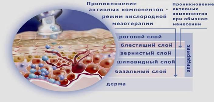 показания к кислородной мезотерапии