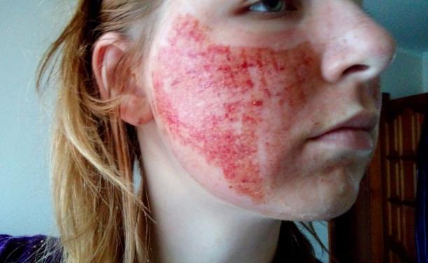 уход за кожей после лазерной шлифовки