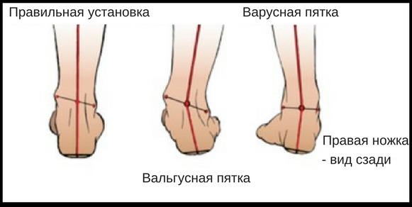кривые ноги у ребенка