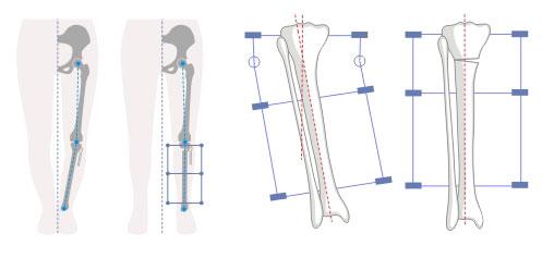 растягивание кости