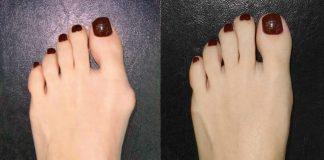методы удаления косточки на ногах