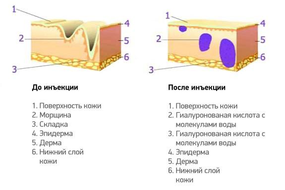 механизм действия векторного лифтинга