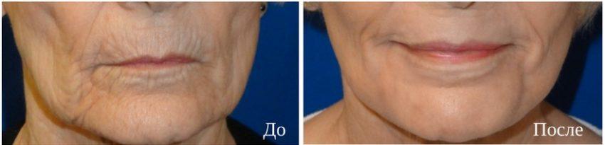 результаты лазерного омоложения лица