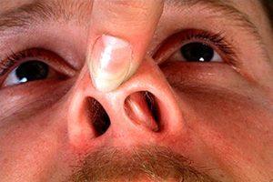 показания к ринопластике