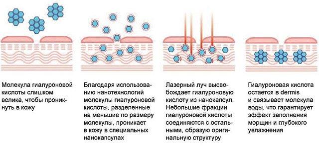 механизм действия лазерной биоревитализации