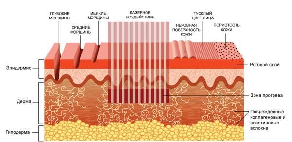 принцип действия лазера на кожу