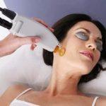 методика лазерного лечения акне