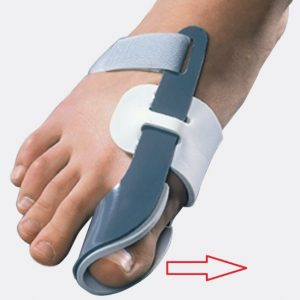 ношение фиксатора после операции на пальцев ног