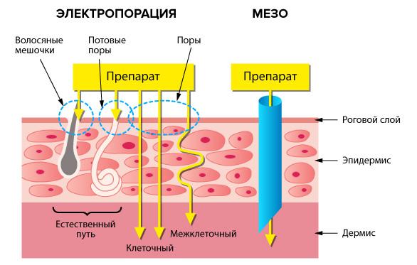 мезотерапия и электропорация
