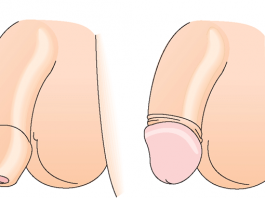 методика проведения обрезания