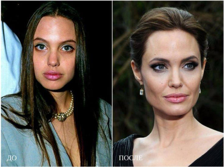 пластика Джоли