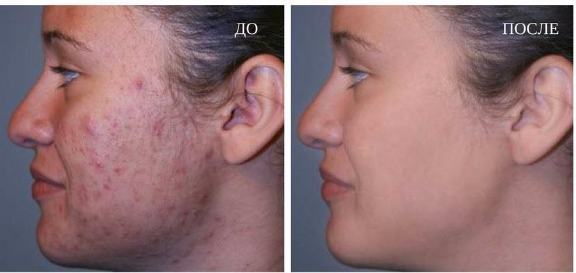 результаты дермабразии лица