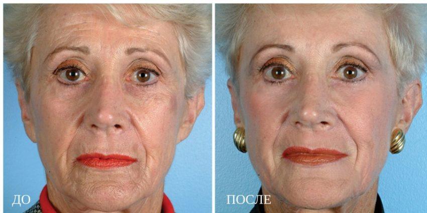 результат дермабразии лица