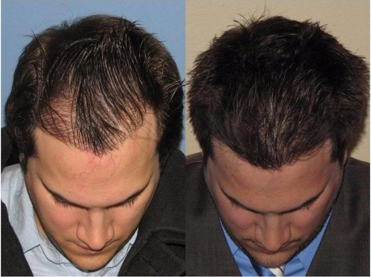 результаты имплантации волос