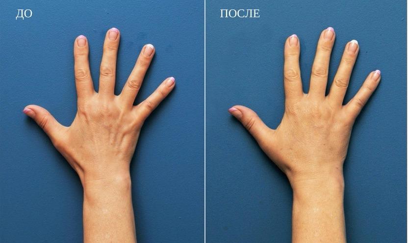 результат после липофилинга рук