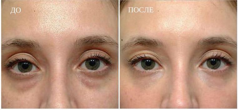 результаты мезоттрапии для зоны вокруг глаз