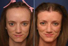 хирургическая и лазерная коррекция линии роста волос
