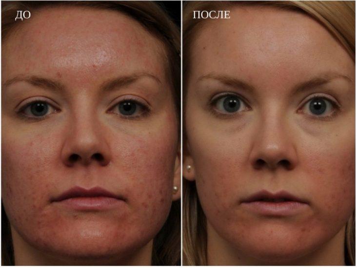 уход за кожей с расширенными порами
