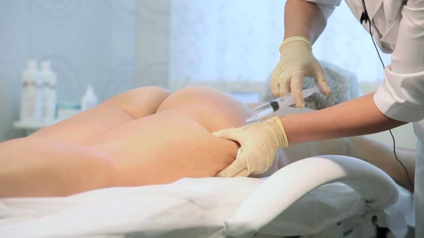 лечение целлюлита